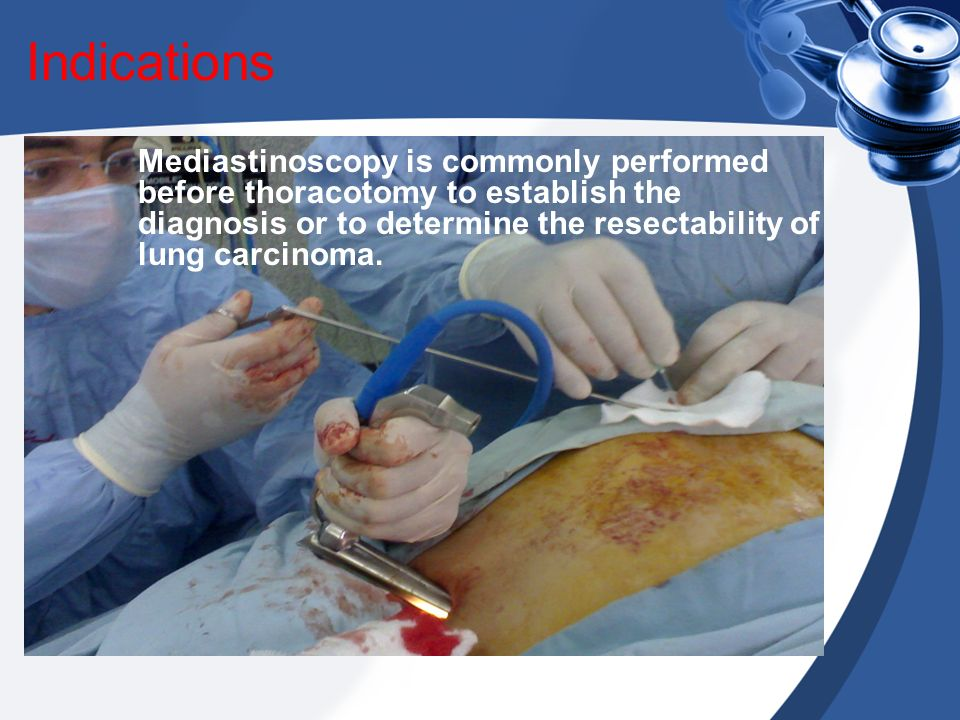 Indications Mediastinoscopy is commonly performed before thoracotomy to establish the diagnosis or to determine the resectability of lung carcinoma.