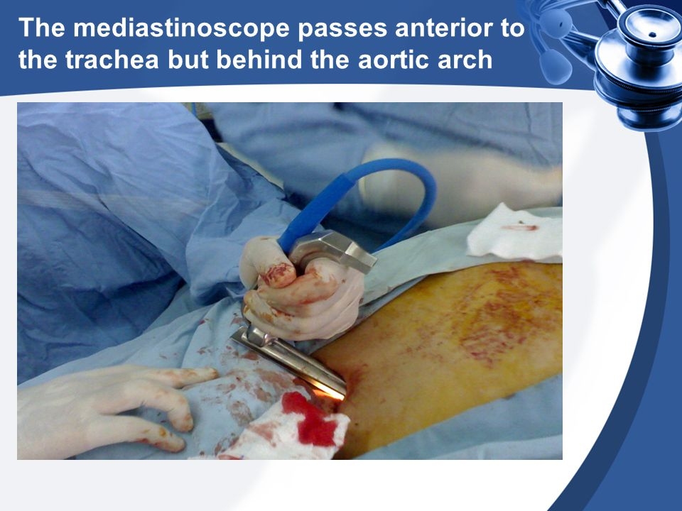 The mediastinoscope passes anterior to the trachea but behind the aortic arch