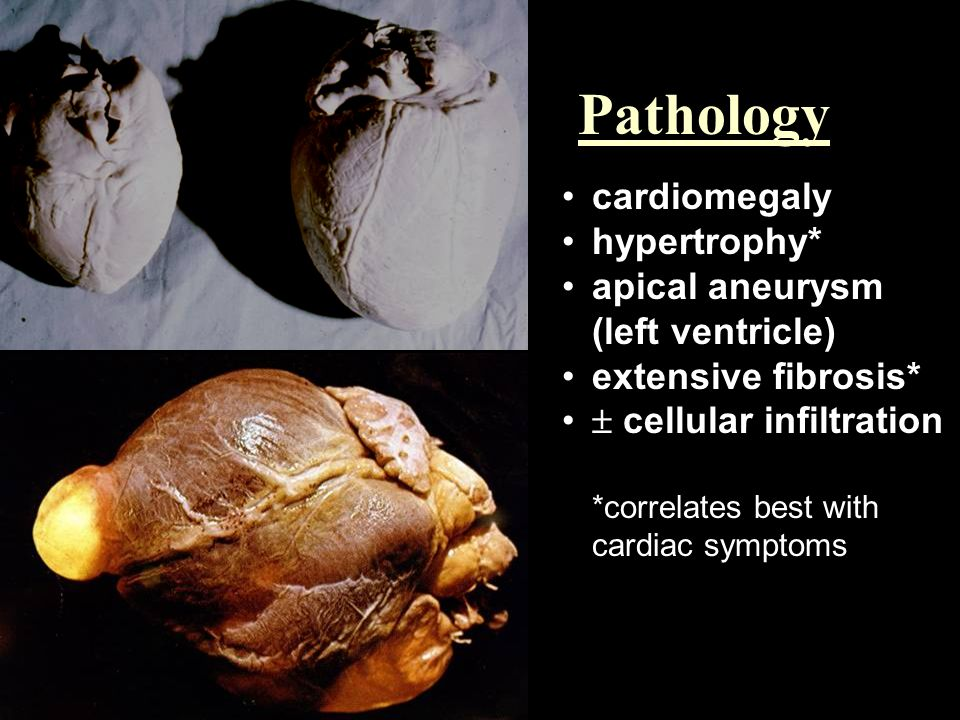 Pathology cardiomegaly hypertrophy* apical aneurysm (left ventricle)