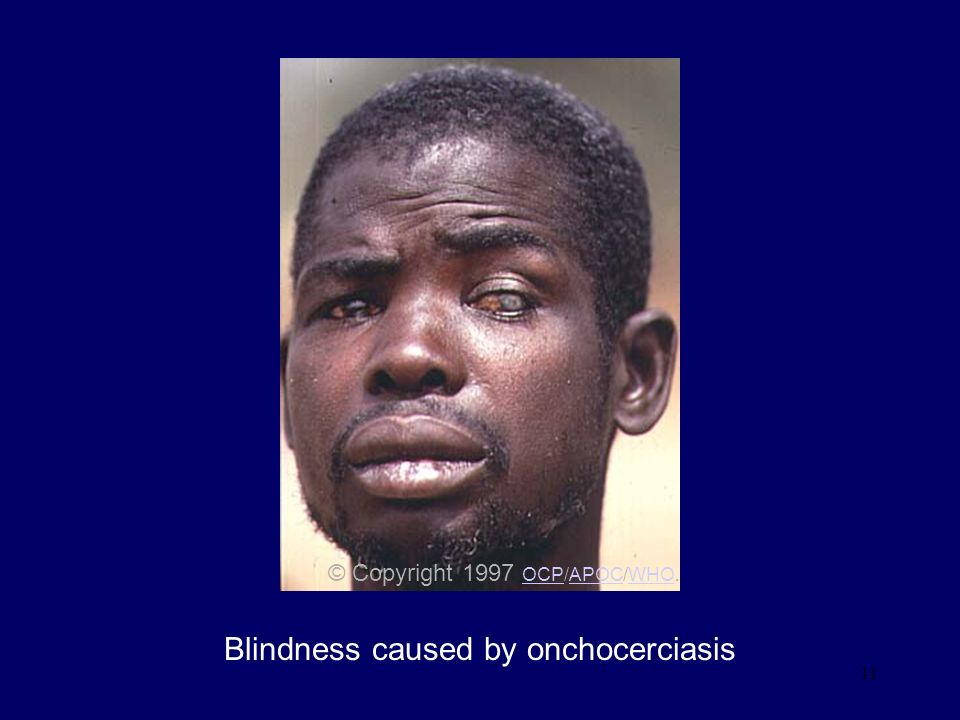 Blindness caused by onchocerciasis