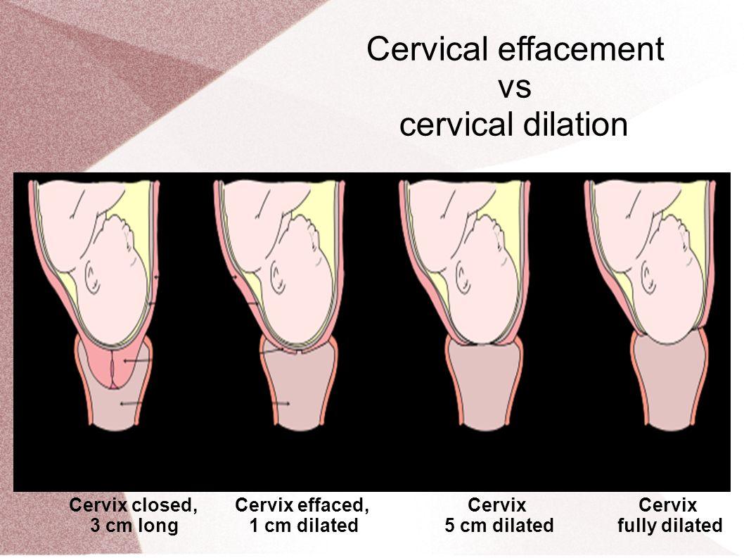 Cervical Effacement Vs Cervical Dilation Cervix Closed 3 Cm Long