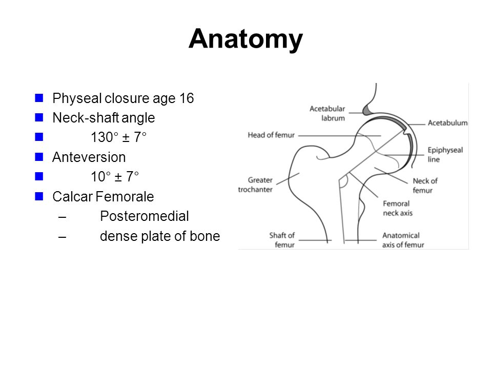 Femoral Neck Fractures - ppt video online download