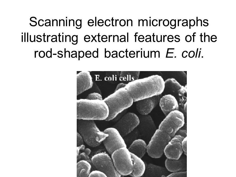Scanning electron micrographs illustrating external features of the rod-shaped bacterium E. coli.