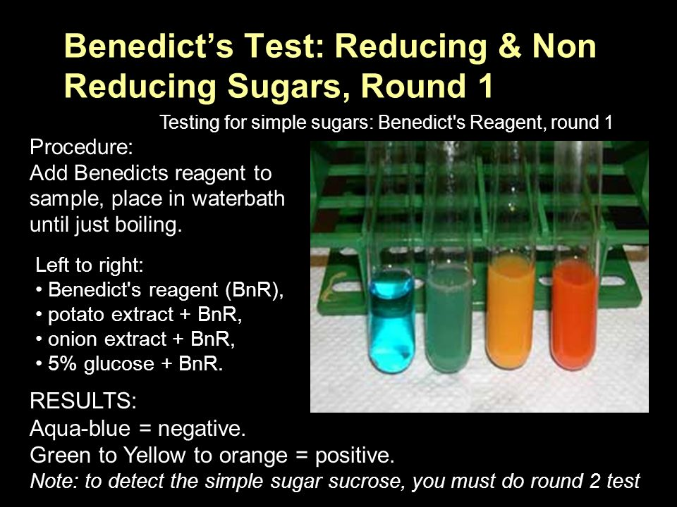 test for reducing sugars biology