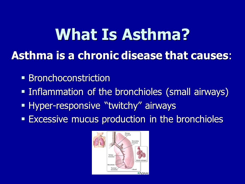 What Is Asthma Asthma is a chronic disease that causes:
