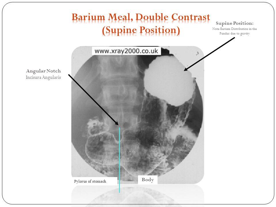 Barium meal manal alosaimi ppt download 11 barium meal ccuart Choice Image