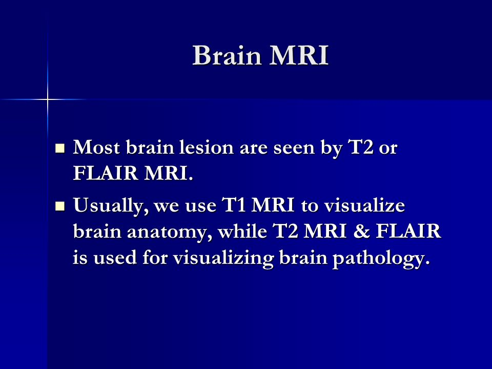 Imaging Anatomy of the CNS - ppt video online download