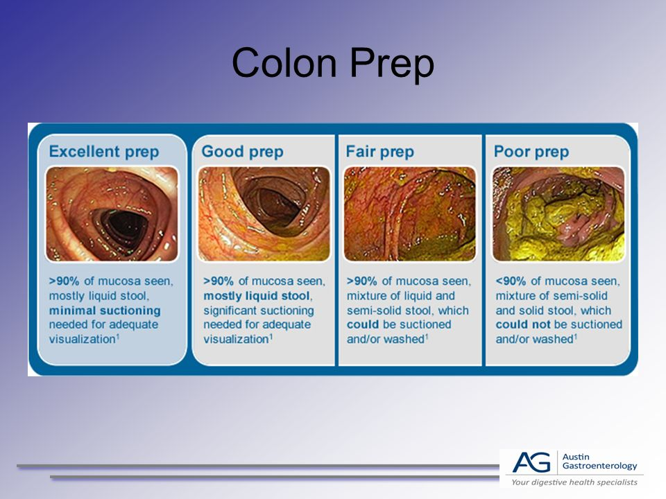 Colon Prep Update 2015 Lets Be Clear Ppt Video Online Download