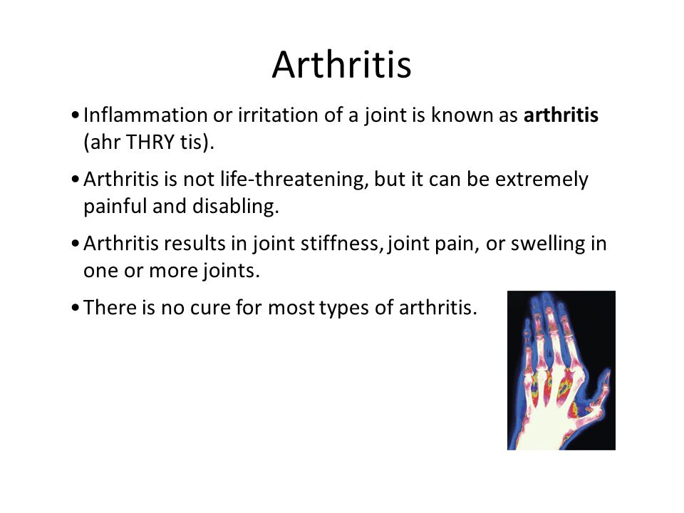 Arthritis Inflammation or irritation of a joint is known as arthritis (ahr THRY tis).