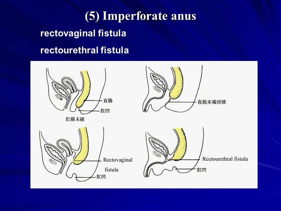 and fistula imperforate recto-vaginal anus Congenital
