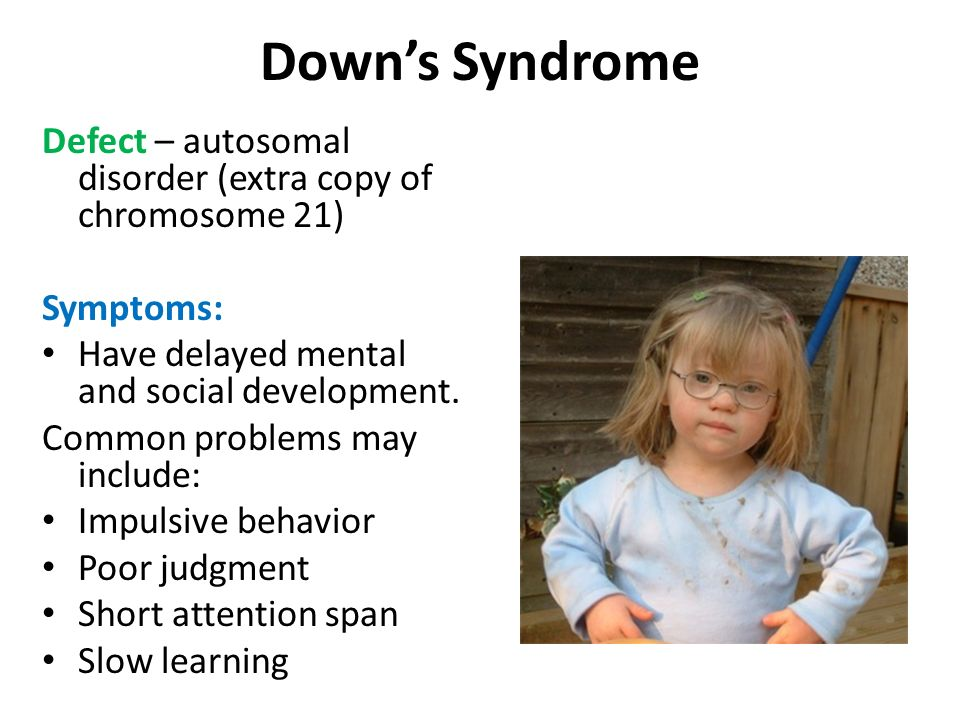 Down's Syndrome Defect – autosomal disorder (extra copy of chromosome 21) Symptoms: Have delayed mental and social development.