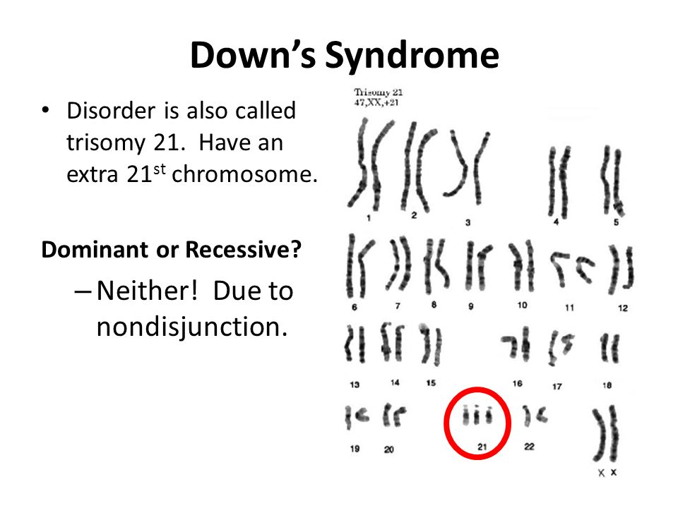 Down's Syndrome Neither! Due to nondisjunction.