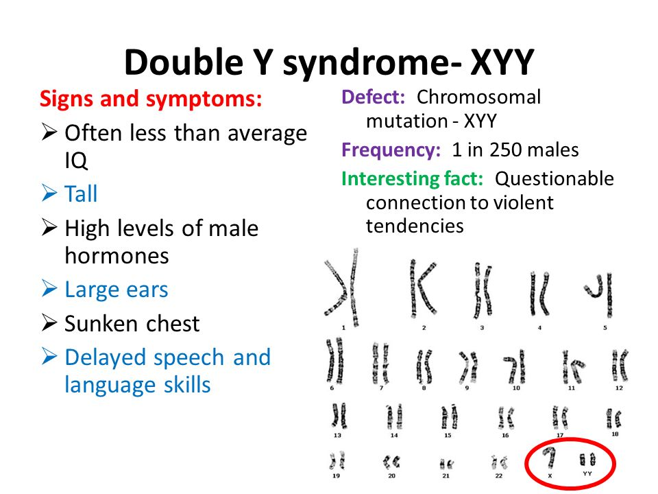 Double Y syndrome- XYY Signs and symptoms: Often less than average IQ