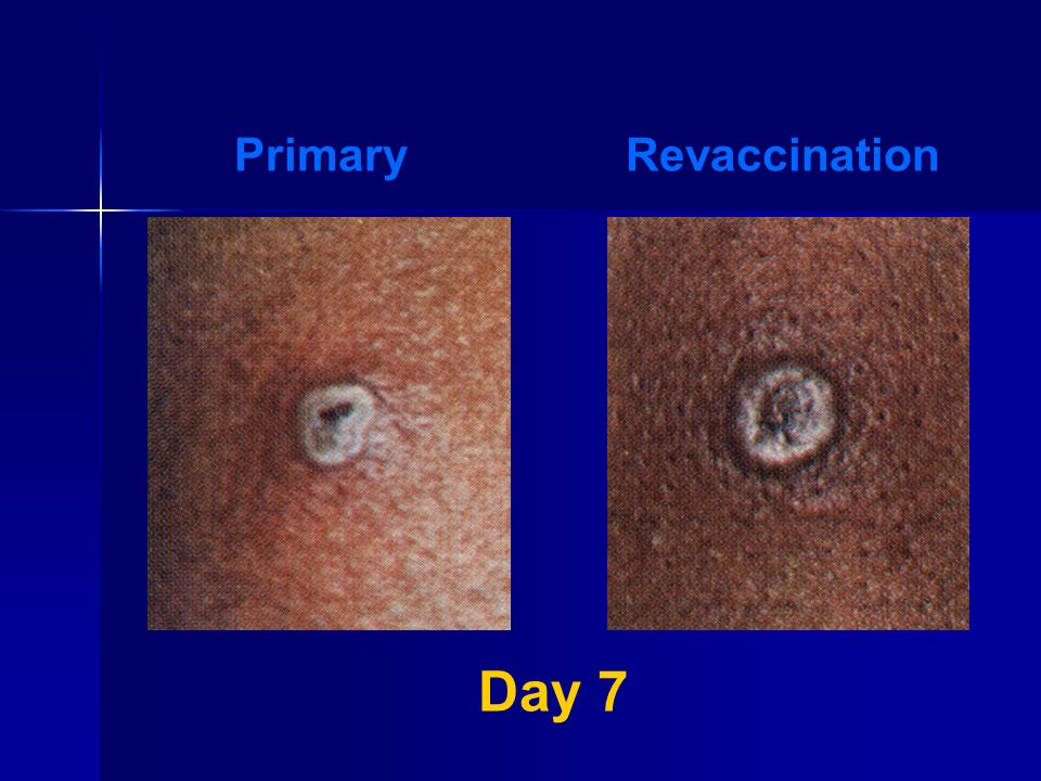 Primary Revaccination Day 7