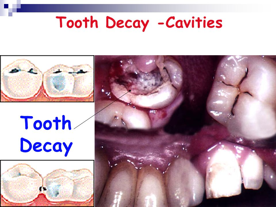 Tooth Decay Tooth Decay -Cavities