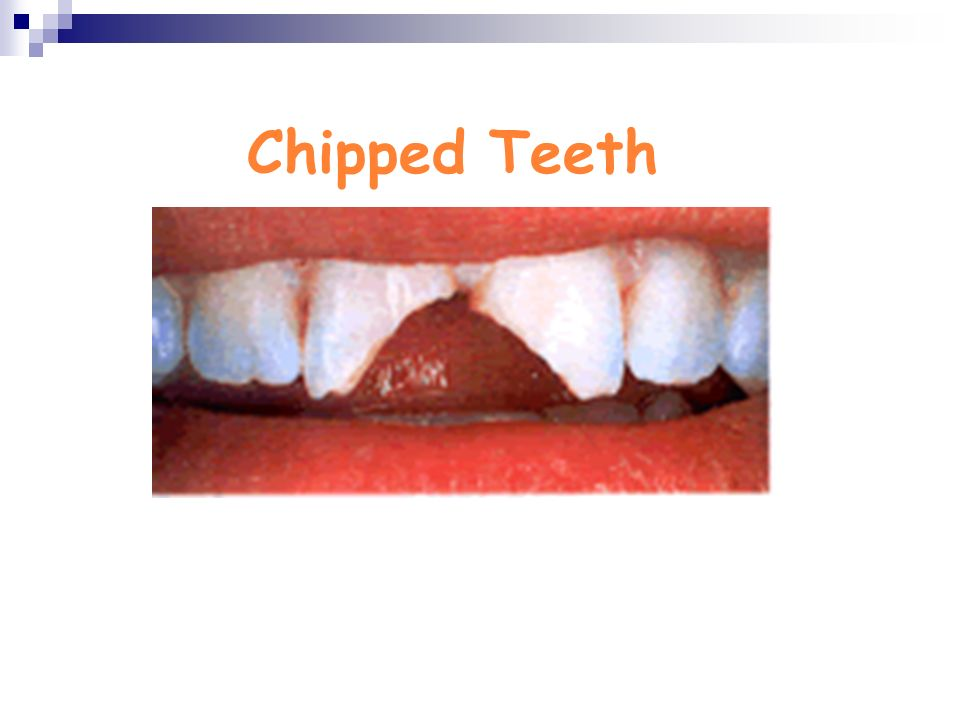 Chipped Teeth