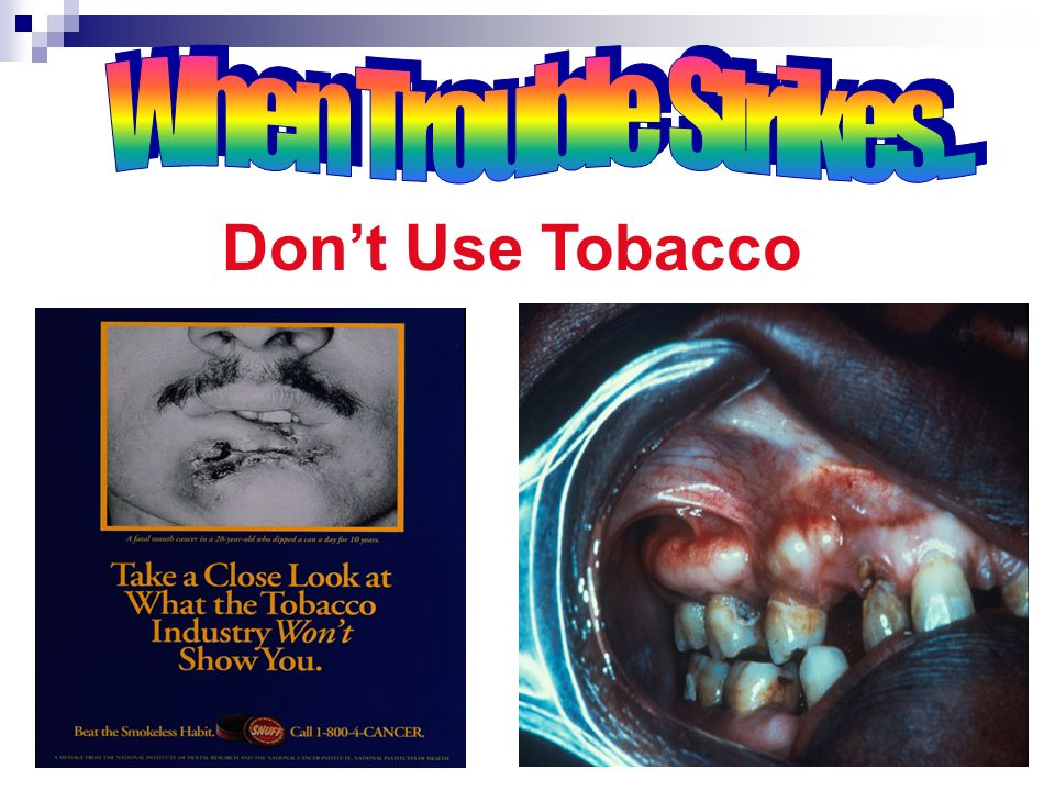 When Trouble Strikes... Don't Use Tobacco