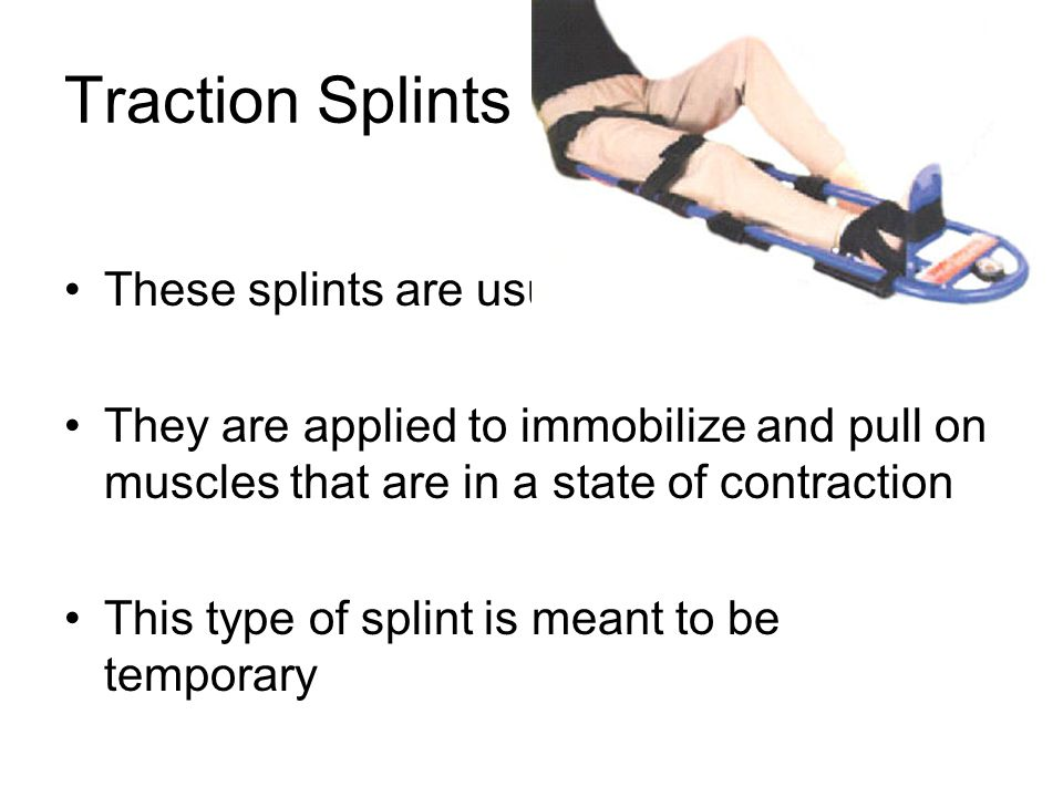 Traction Splints These splints are usually made of metal