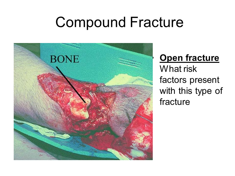 Compound Fracture Open fracture What risk factors present with this type of fracture