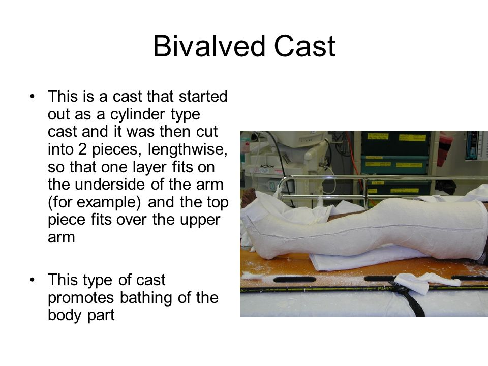 Bivalved Cast