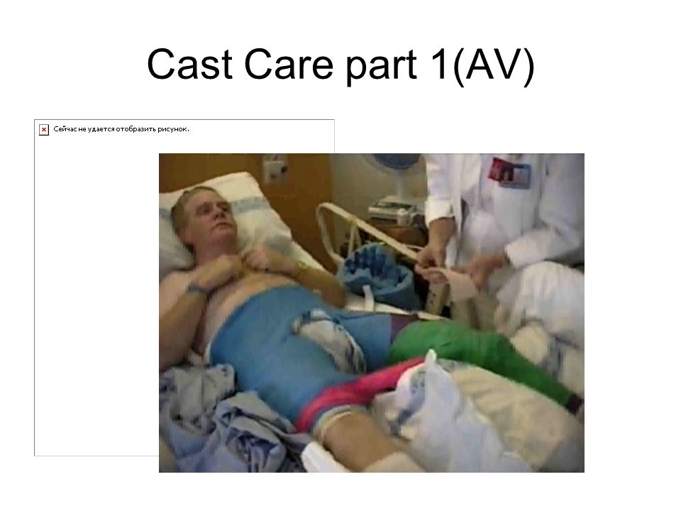 Cast Care part 1(AV)