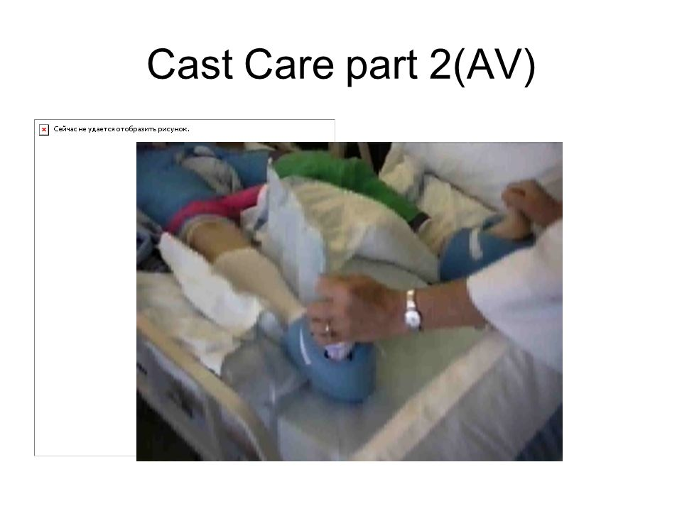 Cast Care part 2(AV)