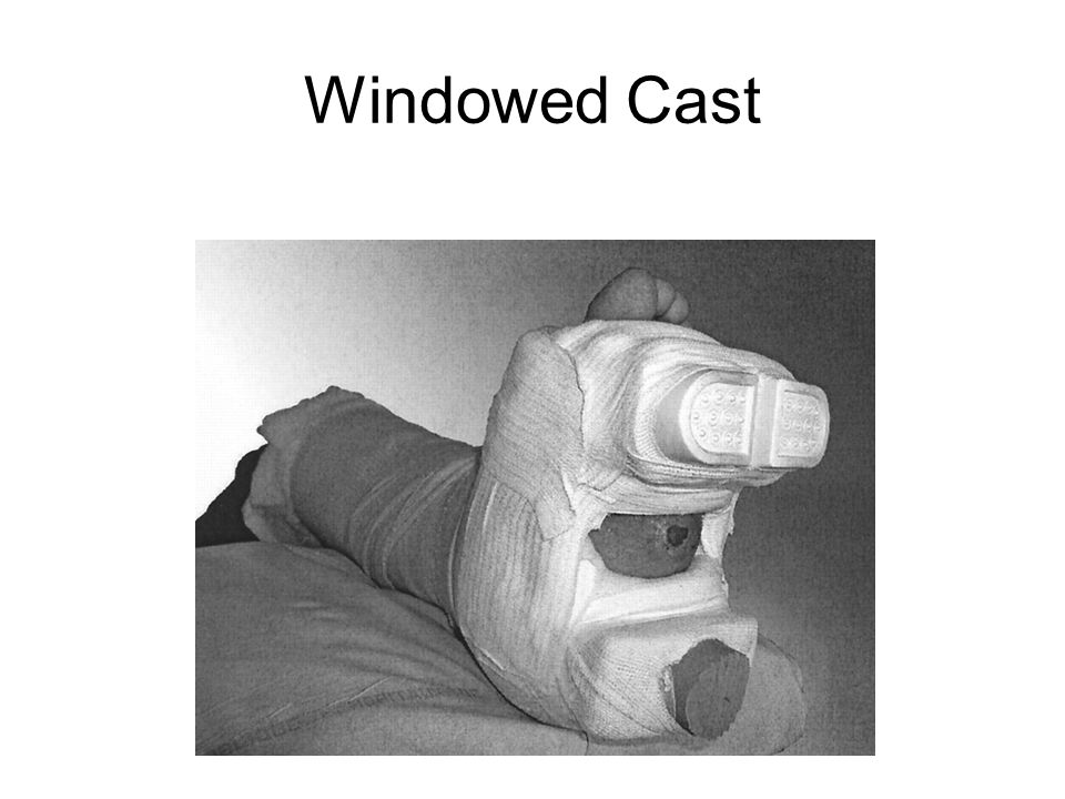 Windowed Cast