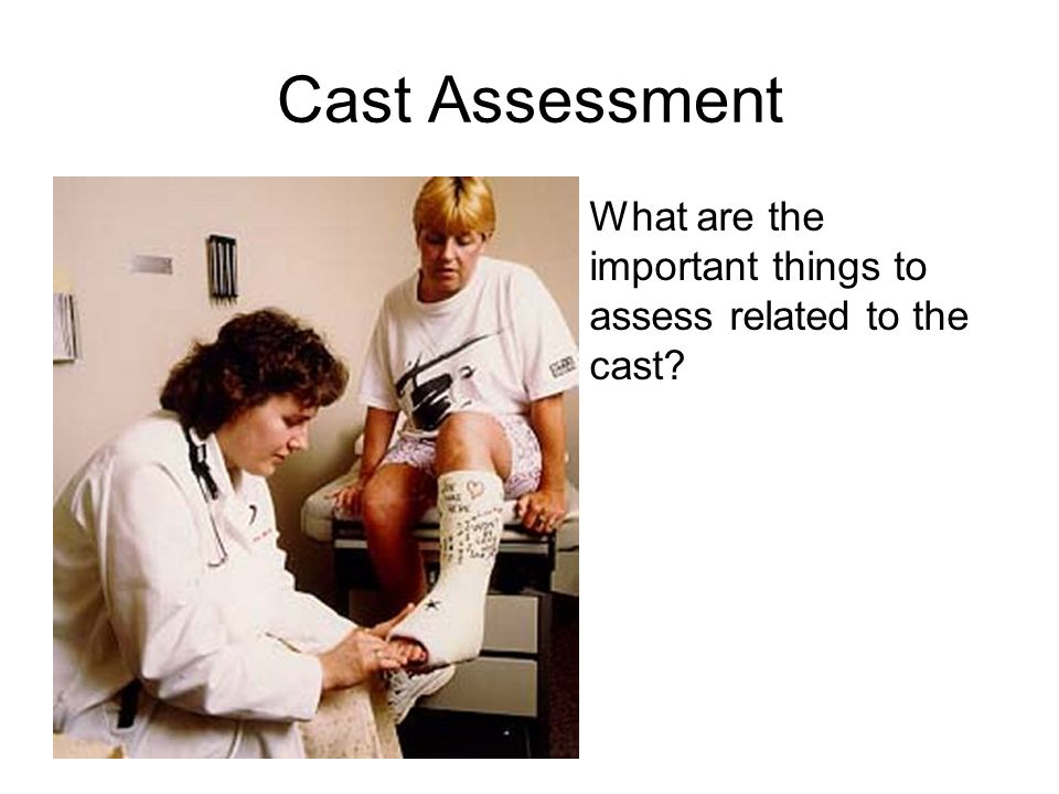 Cast Assessment What are the important things to assess related to the cast