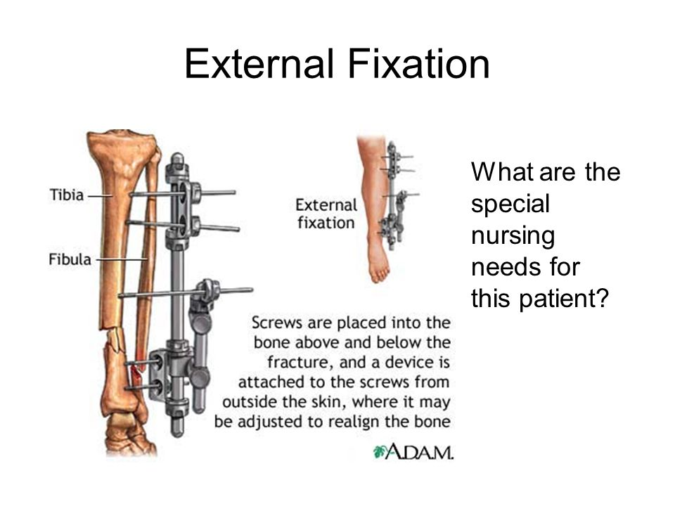 External Fixation What are the special nursing needs for this patient