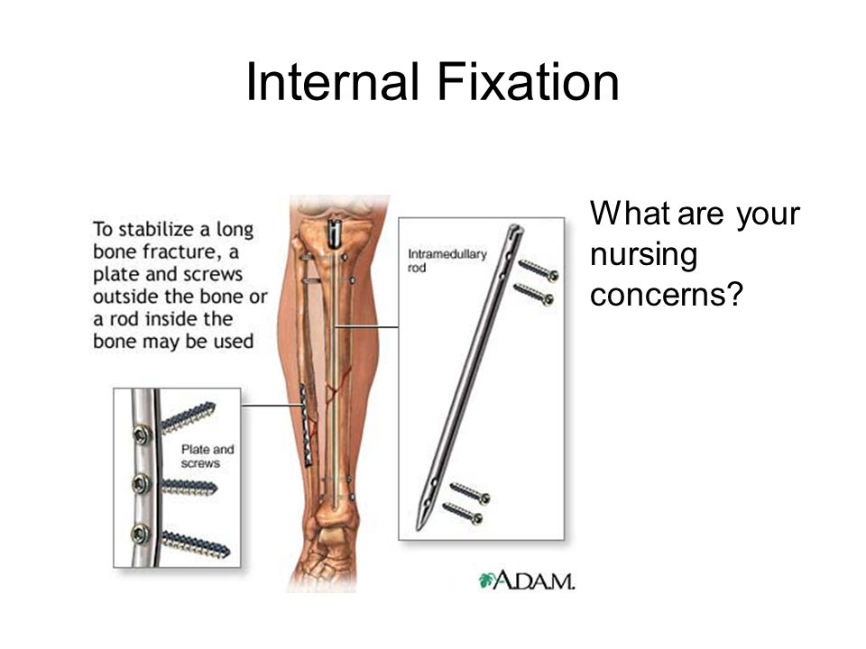 Internal Fixation What are your nursing concerns