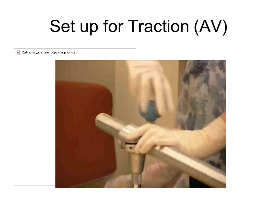 Set up for Traction (AV)