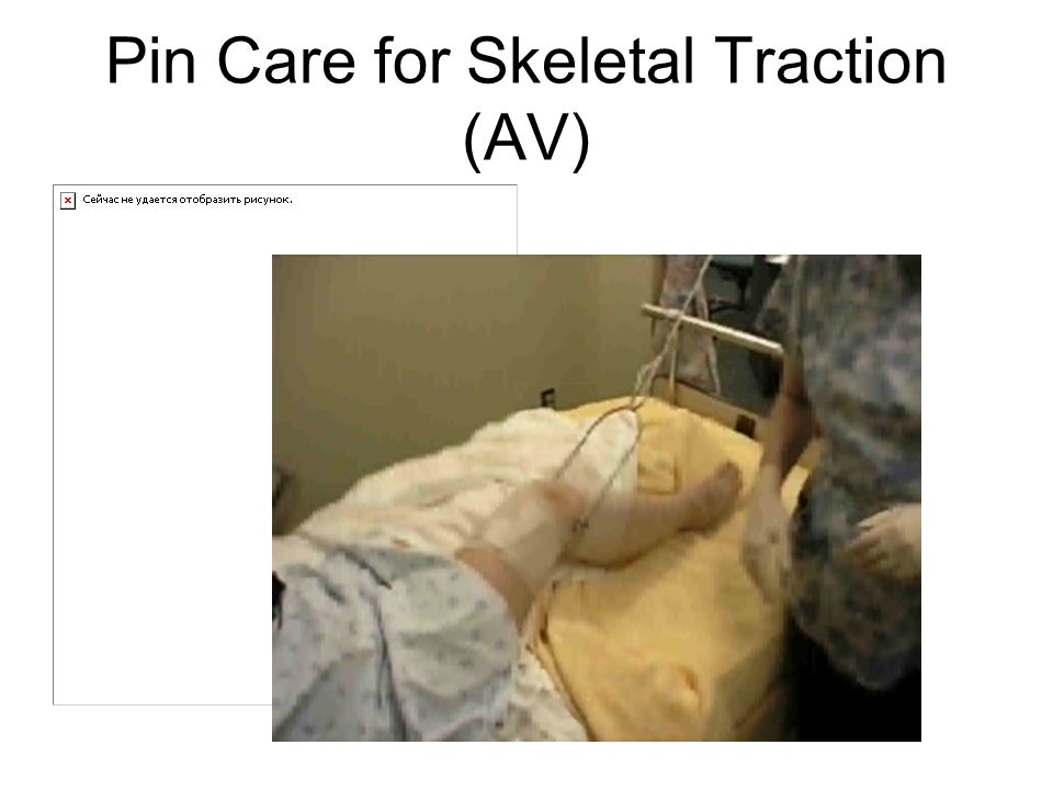 Pin Care for Skeletal Traction (AV)