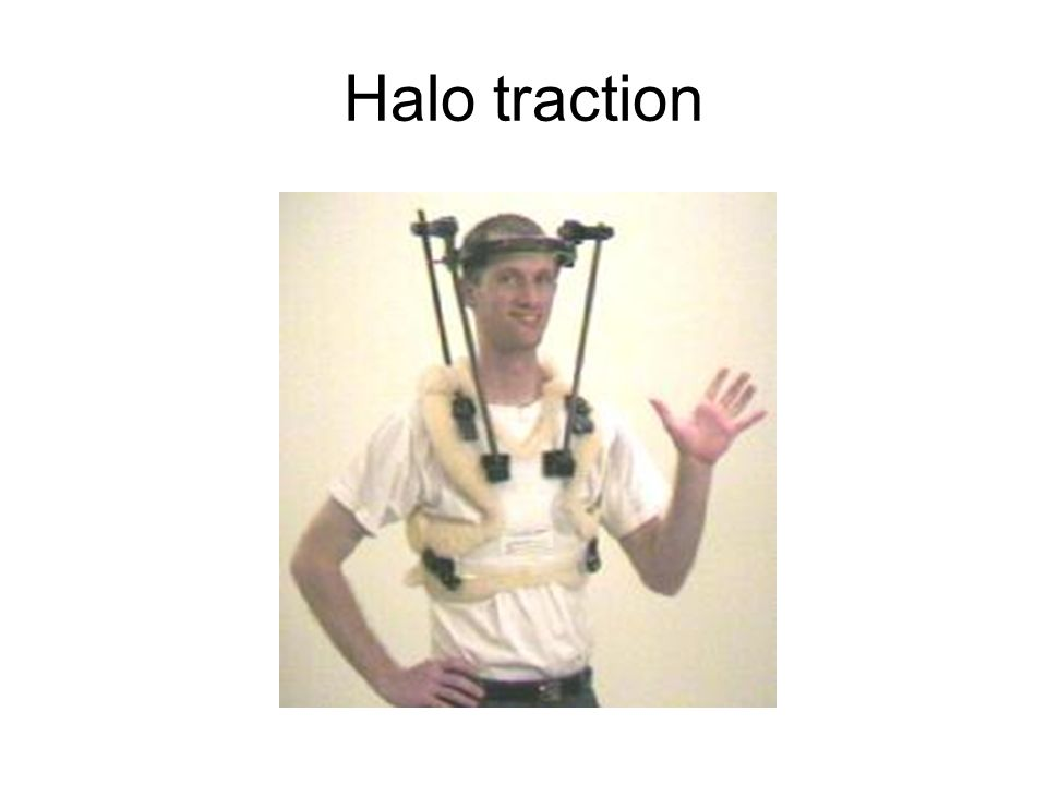 Halo traction