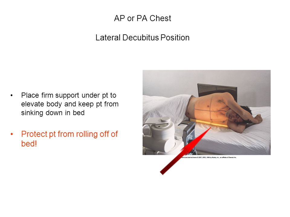 AP or PA Chest Lateral Decubitus Position