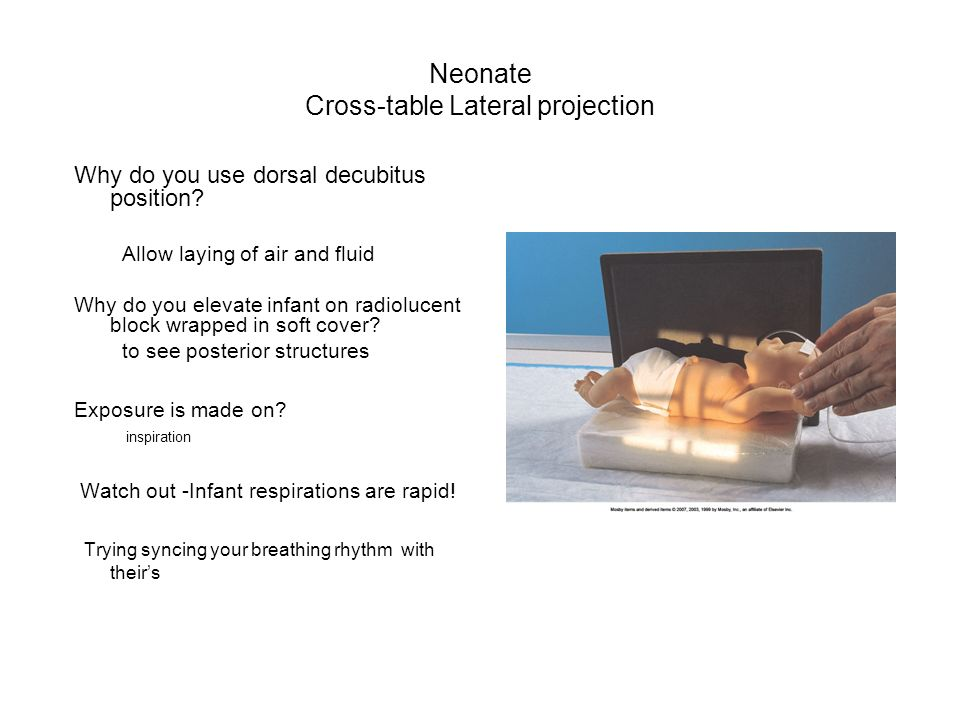 Neonate Cross-table Lateral projection