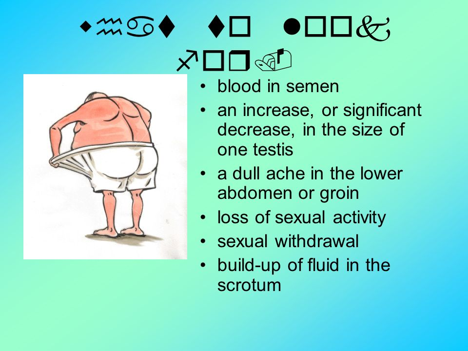 Testicular Cancer By Cyndi Ppt Video Online Download