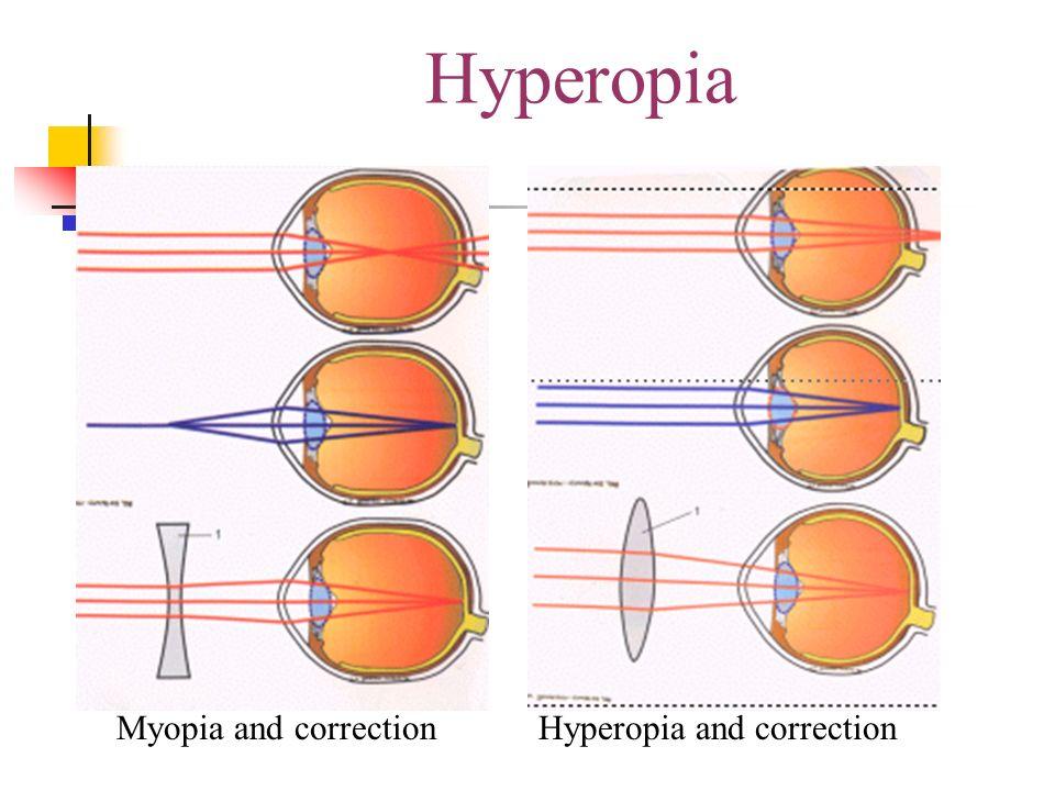 lehetséges-e egyidejűleg myopia és hyperopia