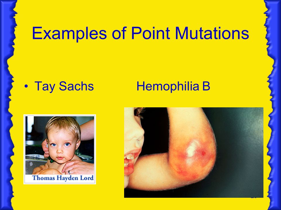 Examples of Point Mutations