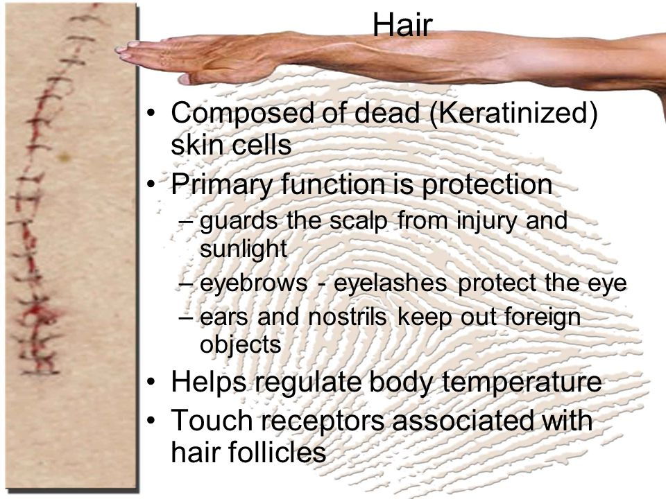 Hair Composed of dead (Keratinized) skin cells