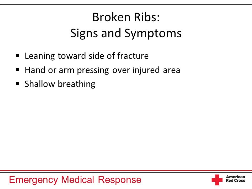 Broken Ribs: Signs and Symptoms