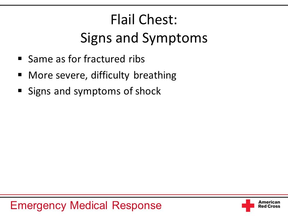 Flail Chest: Signs and Symptoms