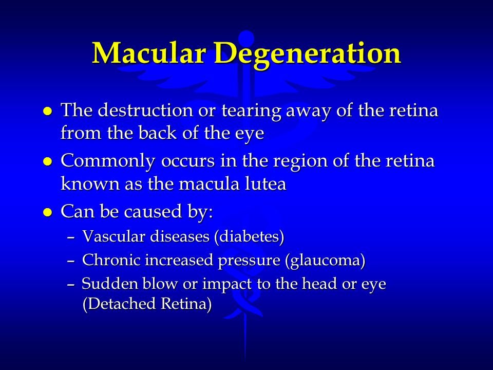Macular Degeneration The destruction or tearing away of the retina from the back of the eye.