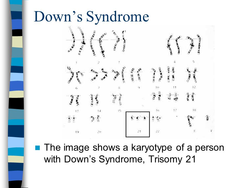 Down's Syndrome The image shows a karyotype of a person with Down's Syndrome, Trisomy 21