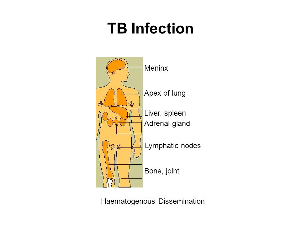 TB Infection Meninx Apex of lung Liver, spleen Adrenal gland