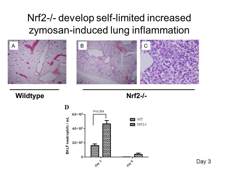 Nrf2-/- develop self-limited increased zymosan-induced lung inflammation