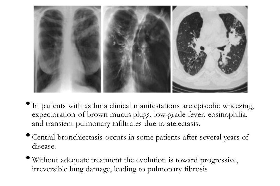 In patients with asthma clinical manifestations are episodic wheezing, expectoration of brown mucus plugs, low-grade fever, eosinophilia, and transient pulmonary infiltrates due to atelectasis.