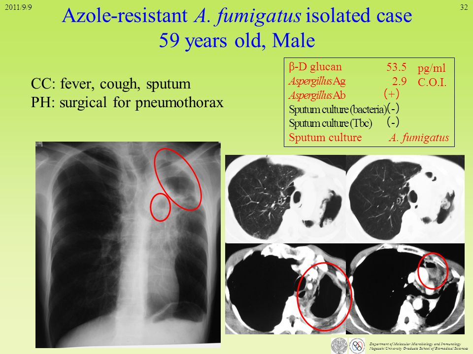 Azole-resistant A. fumigatus isolated case