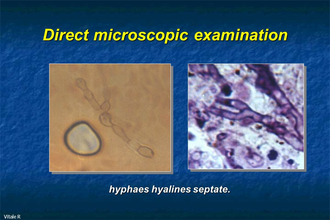 Direct microscopic examination