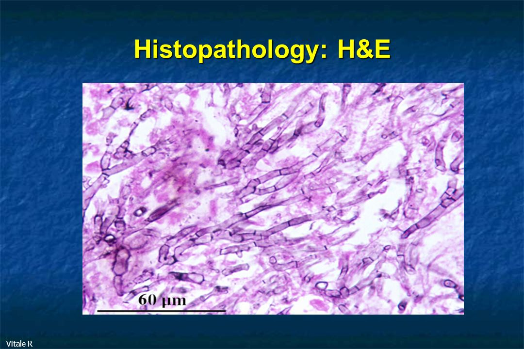 Histopathology: H&E Vitale R