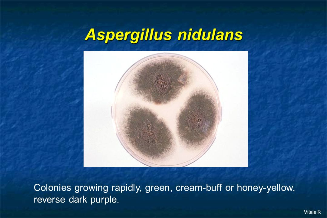 Aspergillus nidulans Colonies growing rapidly, green, cream-buff or honey-yellow, reverse dark purple.
